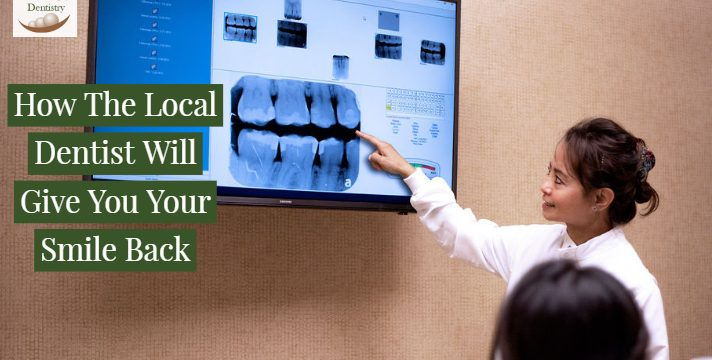 Macatangay - BLOG POST FOR WEBSITE - How TheLocal DentistWill Give You Your Smile Back (2)